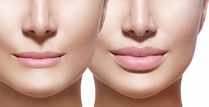 What is the Difference Between Restylane vs. Juvederm?