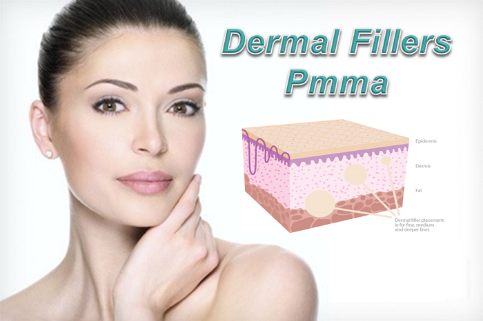 Benefits & Side Effects of Polymethyl-Methacrylate Injectable Fillers