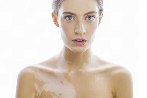 What is Hypopigmentation?: Causes & Treatment Methods