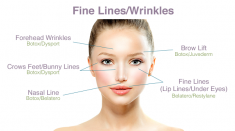 What are Fine Lines Causes & How to Get Rid of Them?