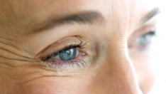 What are Crow's Feet?: Causes and Treatment