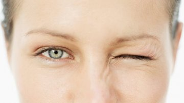 What is Blepharospasm?: Symptoms, Causes & Treatment Options