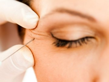Botulinum Toxin (Botox) for Blepharospasm (Droopy Eyelids) Treatment