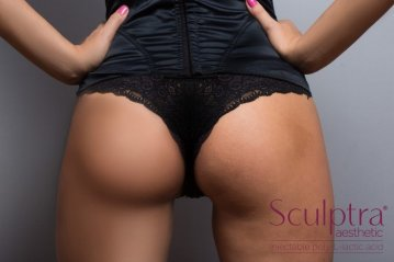 How to Use Sculptra Injections for Buttocks Lift