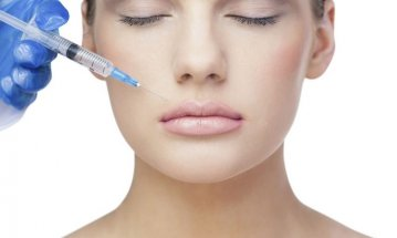 How Long Do Dermal Fillers Last?