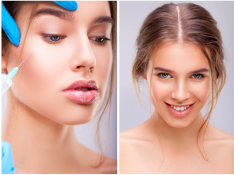 Cheek Augmentation With Injectable Dermal Fillers