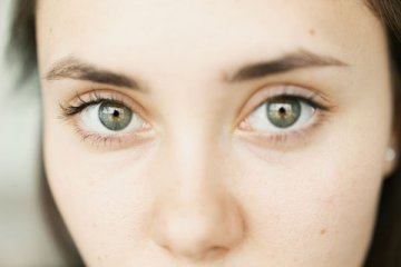 What are Puffy Eyes (Swollen Eyes)? Causes & Treatment